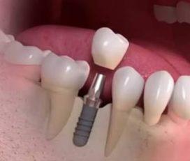 Dentistas Dr. Alexandre e Dra. Valéria