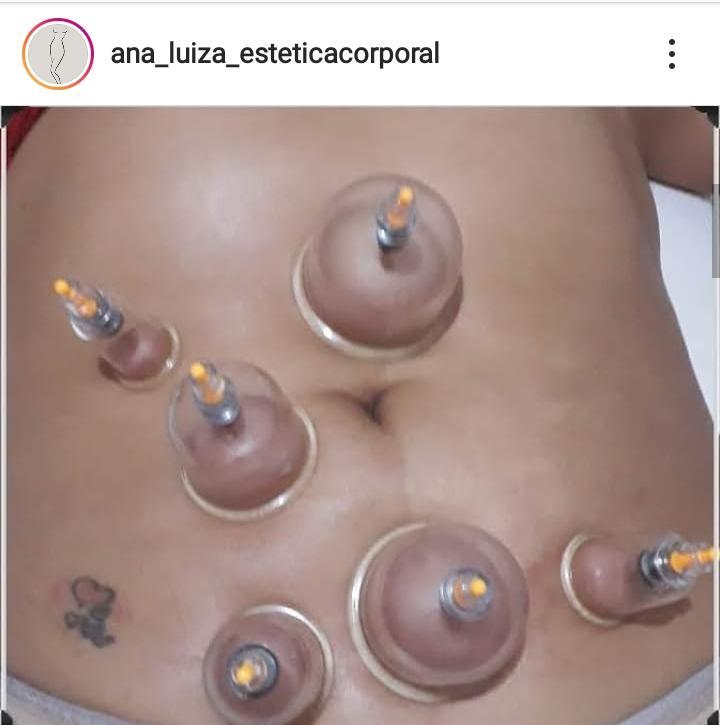 Ana Luiza Estética